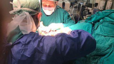"Photo of فريق طبي بمستشفى المنصورة ينجح في إعادة يد شاب بعد قطعها بـ""صاروخ سراميك"""